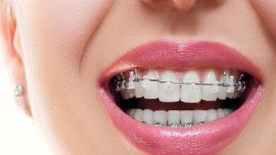 Photo of Diş Teli Fiyatları Hakkında Merak edilenler