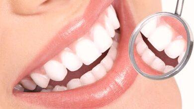 Photo of Diş Beyazlatma Tedavisi